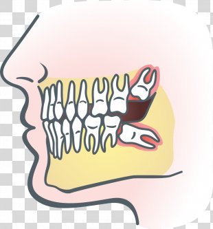Wisdom Tooth Dental Extraction Impacted Wisdom Teeth Dentistry Tooth Impaction - Anatomic Vector Of Teeth PNG