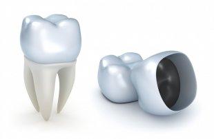 Crown Dentistry Teeth Cleaning Bridge - Teeth PNG