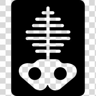 Bone X-ray Lung - X Ray PNG