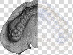 Dentistry X-ray Microtomography Computed Tomography Dentures - X-ray PNG